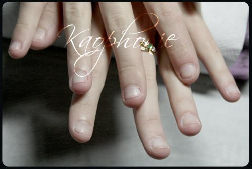 ophélie-ongles-rongés-001